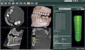 Servicio de Tac y radiografía dental_2