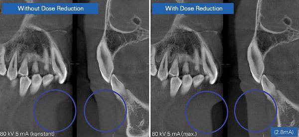 Servicio de Tac y radiografía dental_4