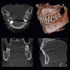 Urgencias dentales_3