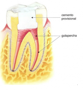 endodoncia3
