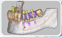 implante1