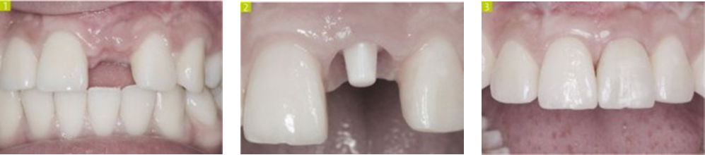 implante5
