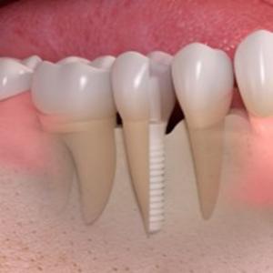 implante6