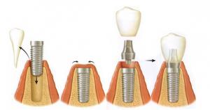 implante8