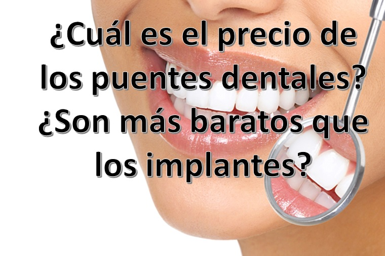 Precios de implantologia dental